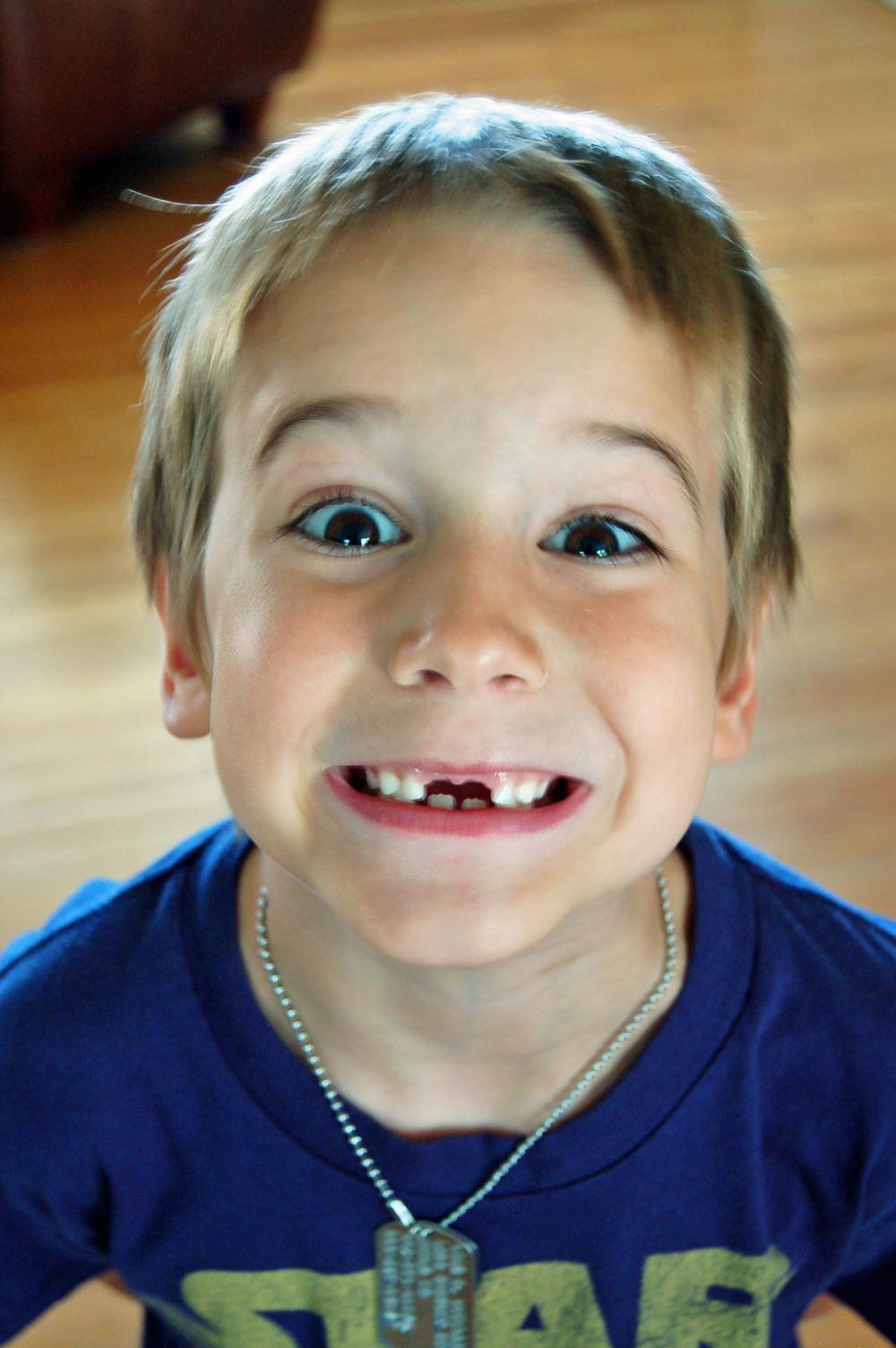 liam's missing teeth